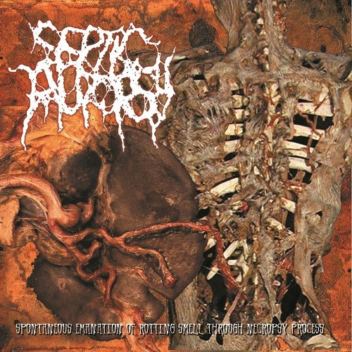 Septic Autopsy - Spontaneous Emanation Of Rotting Smell Through Necropsy Process (2016)