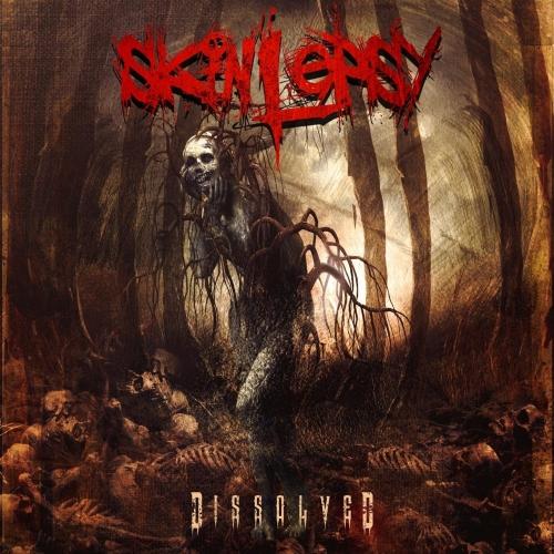 Skinlepsy - Dissolved (2017)