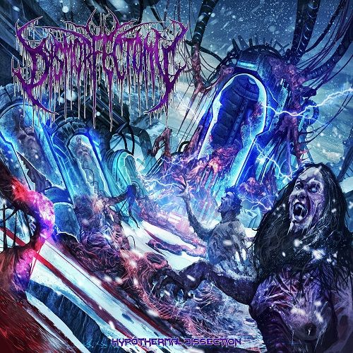 Dysmorfectomy - Hypothermal Dissection (2017)