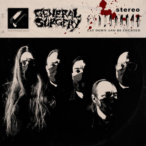 General Surgery - Lay Down and Be Counted (EP) (2021)