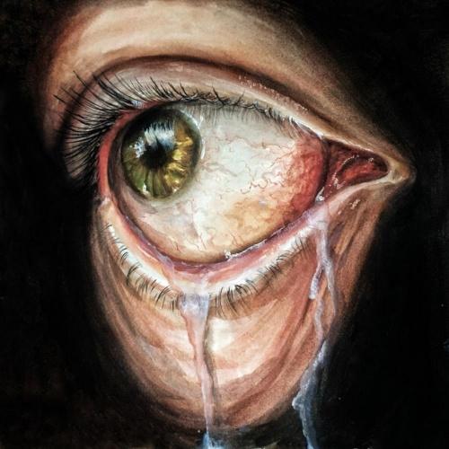 Prognoise - Lacrimal (2021)